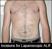 Incisions for Laparoscopic ALIF