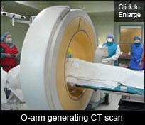 O-arm generating CT scan
